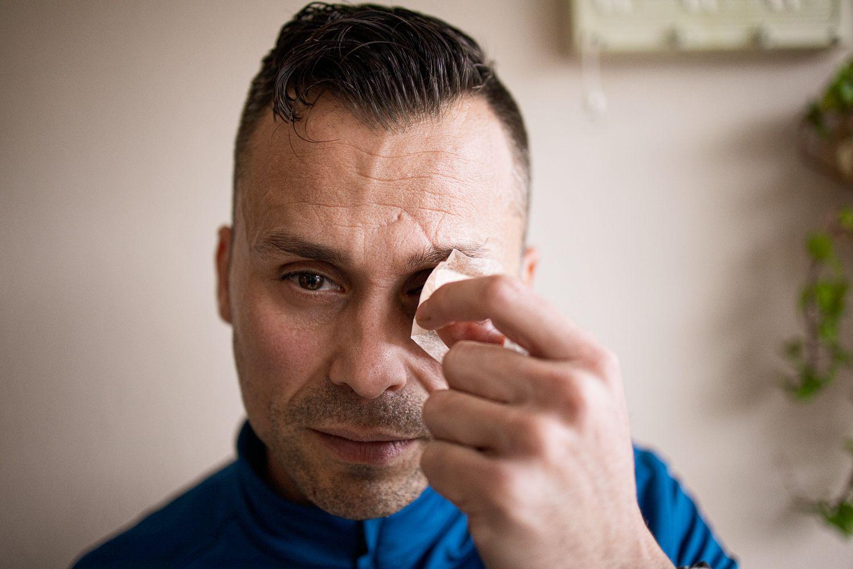 """El calvario de Juan Cadenas, el policía que perdió un ojo y su trabajo """"por no mirar para otro lado"""""""